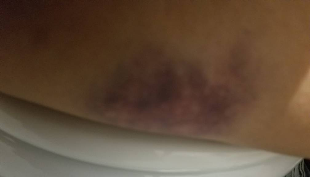 I had a big bruise with pink dots on my thigh by Magic-Kristina-KW