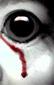 Bloody eye2