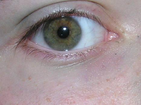 Eye Shot 01