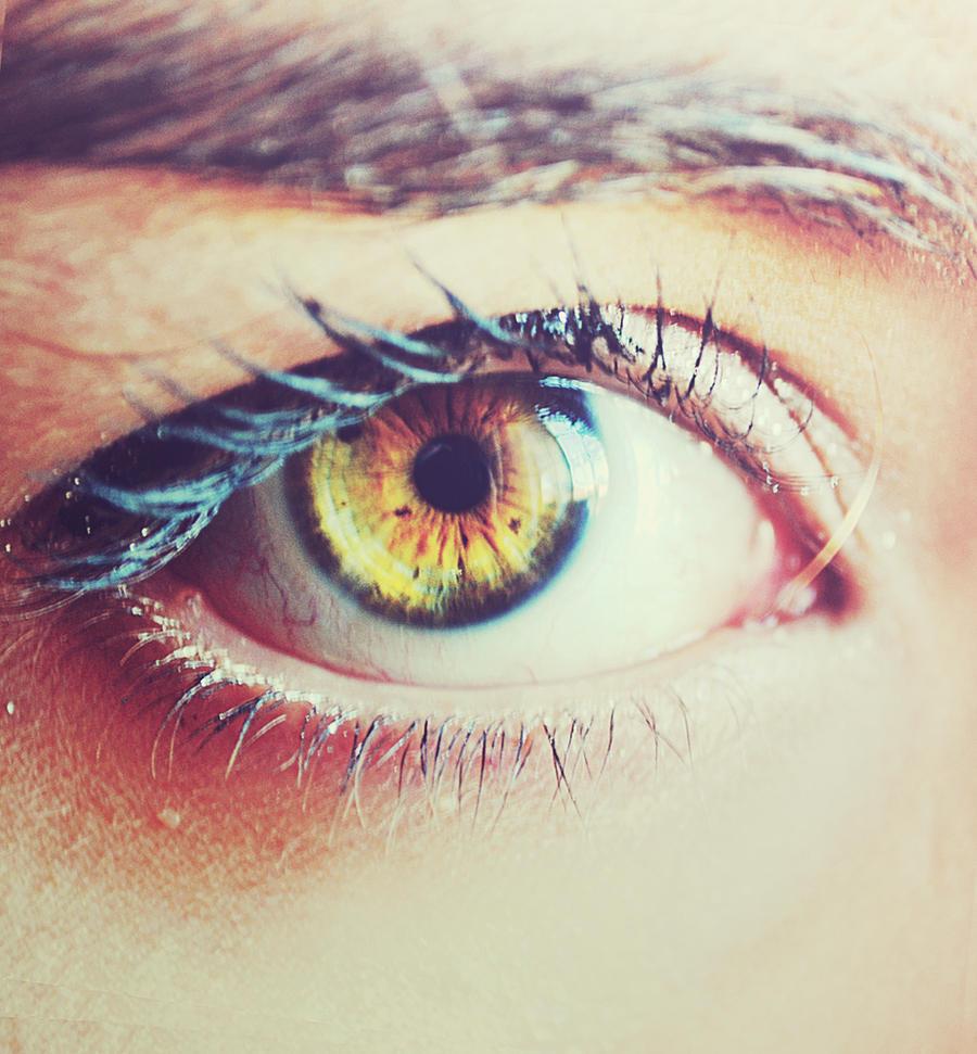 Heterochromia Iridum by EneKiedis on DeviantArt  Heterochromia I...