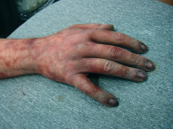 http://fc04.deviantart.net/fs43/i/2009/097/a/6/Dead_Hand_by_KH_FX.jpg
