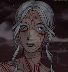 Fiora Dying