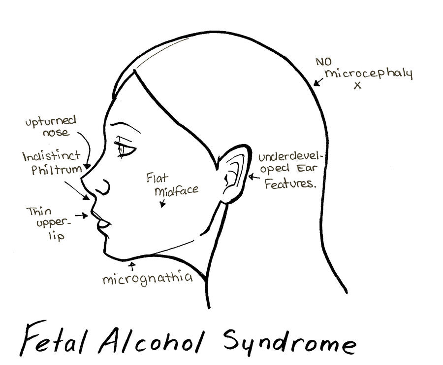 stopping fetal alcohol syndrome Fetal alcohol syndrome disrupts the formation of nerve cells in the developing brain of the fetus this is a particularly poignant issue in the last trimester of pregnancy and during the first few years of the baby's life.