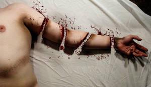 Severed Arm Manipulation