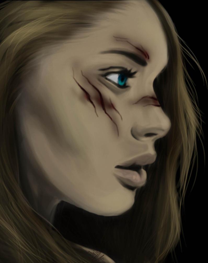 Adolescente avec cicatrice sur le visage Bloodscars_girl_by_elfenfan4ever-d6z7aj0