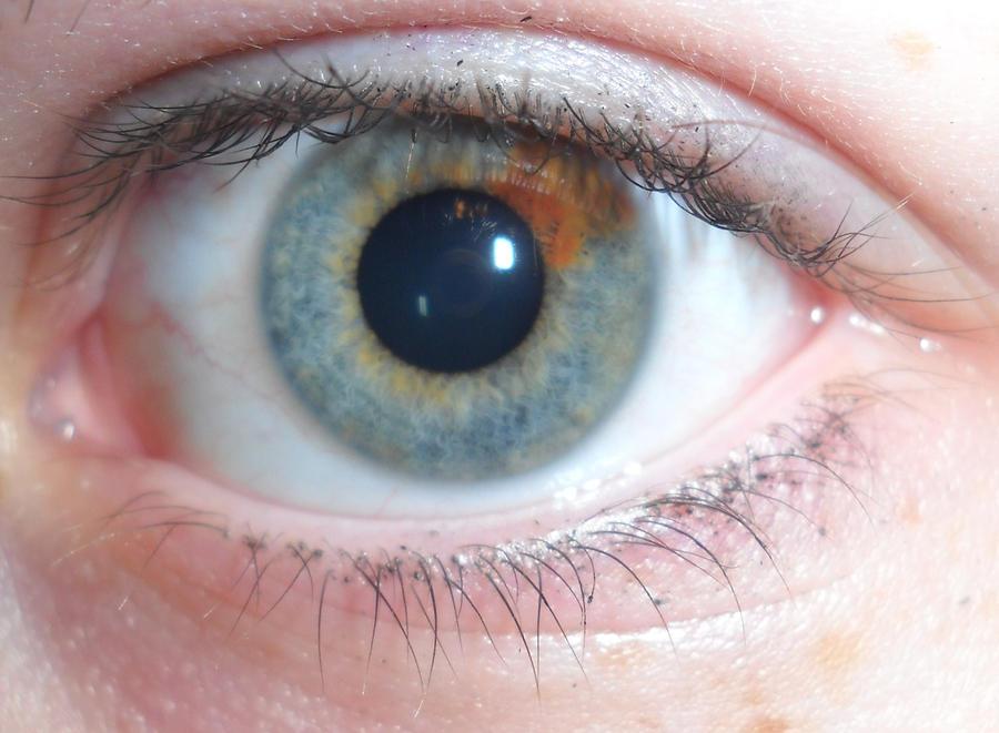 Heterochromia Iridum b...