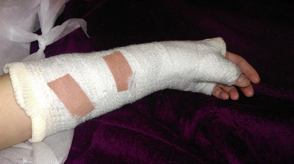 So... I broke my wrist. by kizgoth