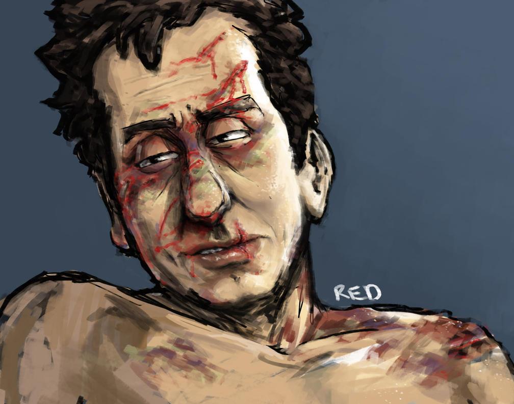 Cal Bruises by ExtremlySelfishChild