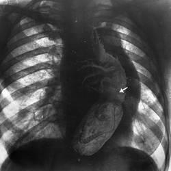 ICSU Archives - inhaled spores