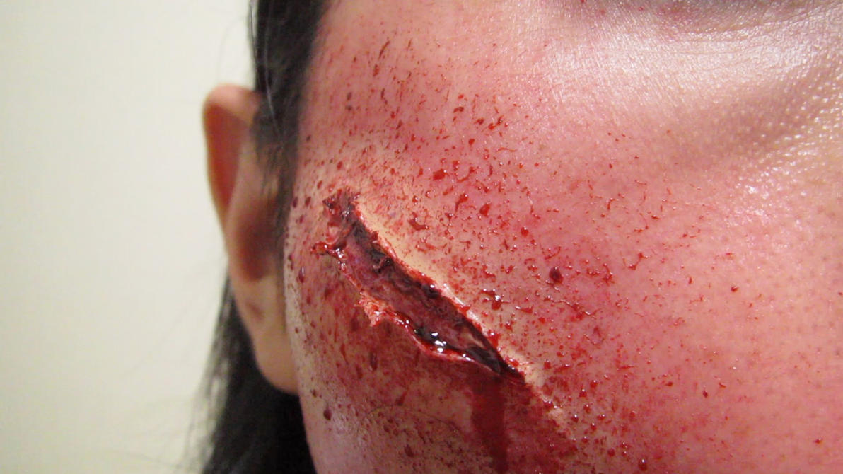 similiar cut wounds keywords