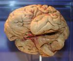 Denver Museum Anatomy Brain 229