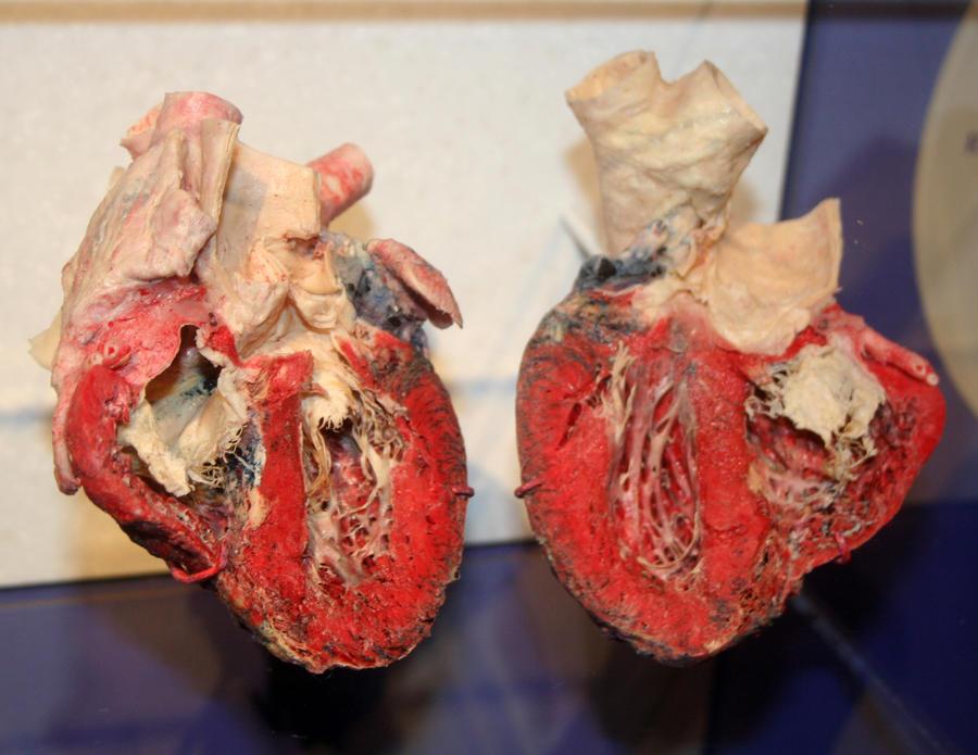 Denver Museum Anatomy Heart 237 by Falln-Stock