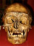 Human Skull 1