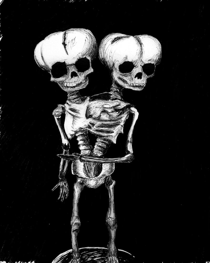 Two Headed Baby Skeleton by Dwheels