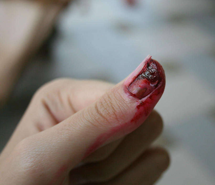 Cracked nail by krakenese on DeviantArt