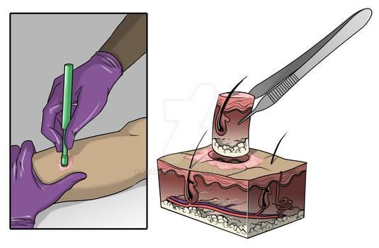 Skin Punch Biopsy