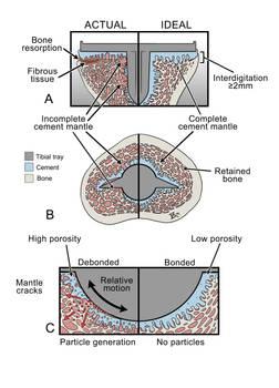 Cement Debris and Particle Disease