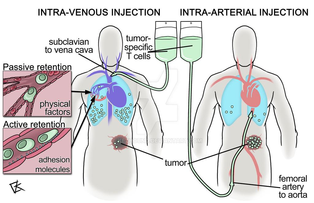 Intra-arterial immunotherapy by Kezhound on DeviantArt