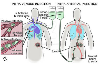Intra-arterial immunotherapy