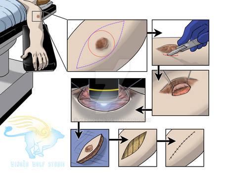 Intraoperative intravital microscopy 1