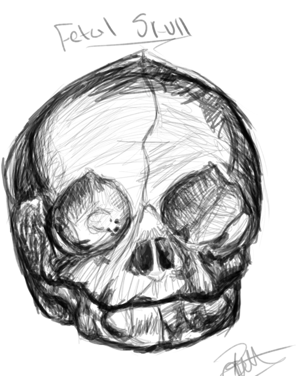 Anatomy: Fetal Skull by LithiumSwirl on DeviantArt