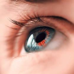 Heterochromia iridum - Wip by myuneko626