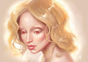 Albino by MirageMari