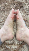 Sandy wrinkled arches!