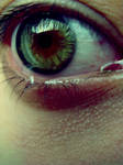 It Hurts.