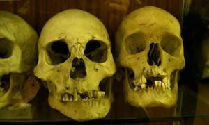 primate 04: human skull