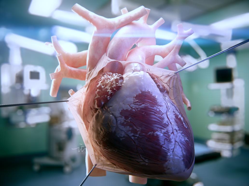 cardiac anatomy by icrdr
