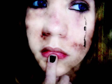 Burned girl