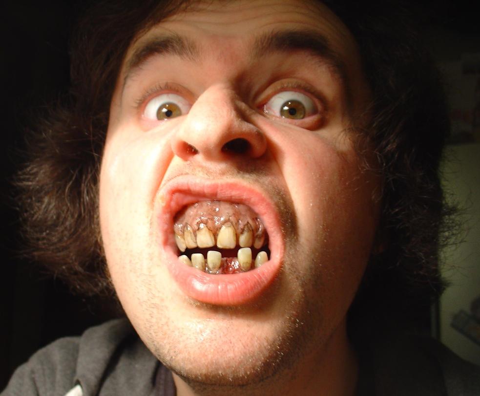 Zombie Dentures by JonnyGore
