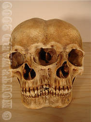 Conjoined Human Skull by dreggs88