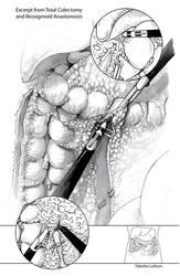 BMC - Surgical Illustration by Strayfish