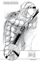 BMC - Surgical Illustration