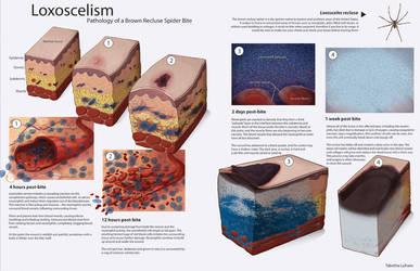 Loxoscelism - Pathology by Strayfish
