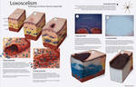 Loxoscelism - Pathology