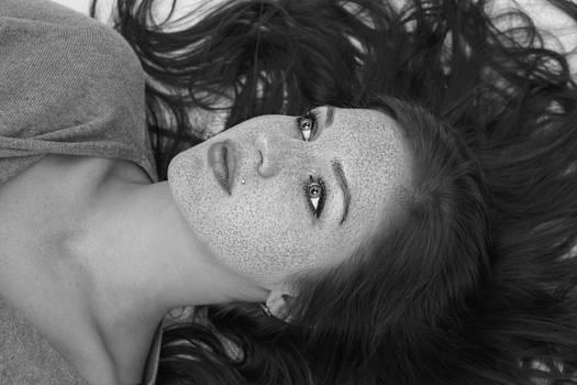 A Rainstorm Of Freckles