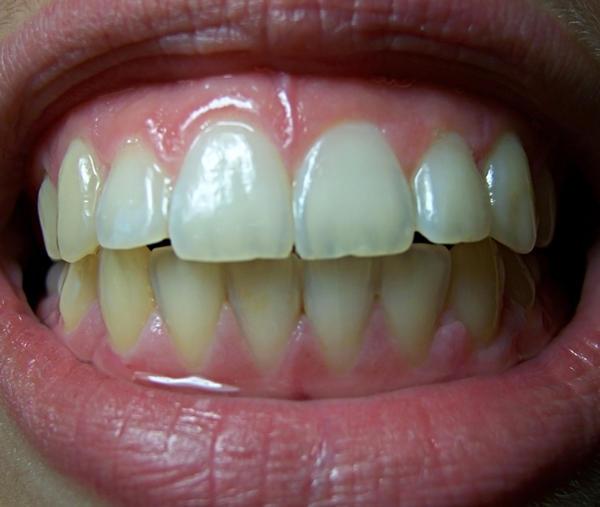 Teeth II by KW-stock