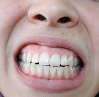 Mouth XVII by KW-stock
