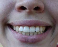 Mouth XXXXXII by KW-stock