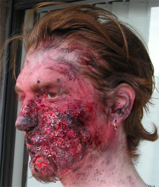 how to create burned skin sfx