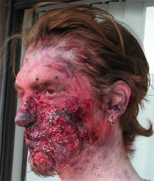 Third degree facial burns