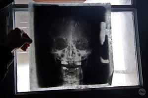 Radiology (Bottomwhipped Asylum) by adurbex
