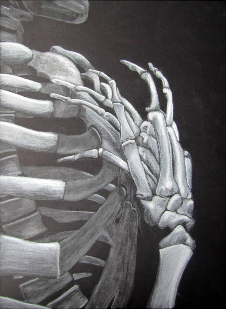 My Aching Heart by dorkasaurus-mel