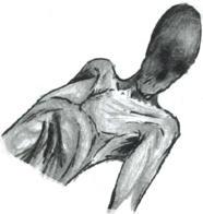 Torso Head by asylumseaker