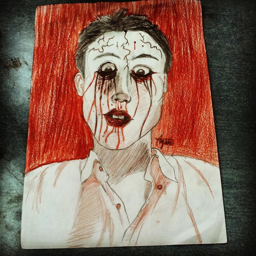 Me Bleeding by agamfable