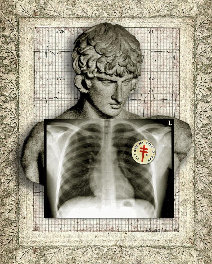 X-Ray by dick-allowatt