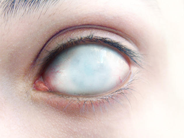 Blind Eye By Bizzar On Deviantart